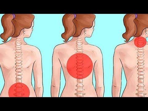 Ideas súper útiles para mejorar Dolor de espalda alta