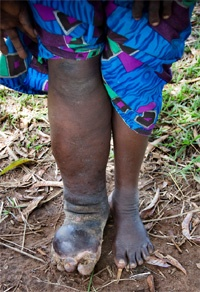 Elephantiasis lymphatic system and mature worm