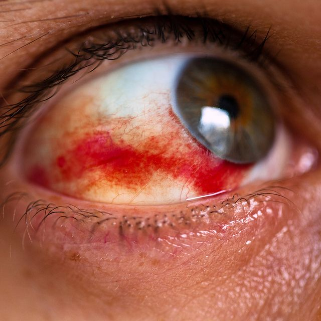 Bloodshot Eye In Dog Popped Blood Vessel