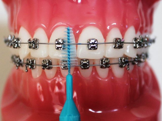 To get rid of any complication at the later stage & to get the best results one must go to an experienced and best orthodontist.