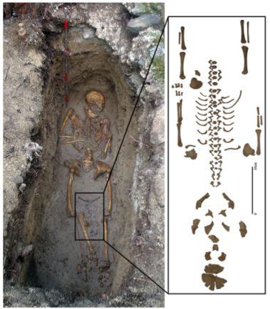 Coffin Birth definition ..