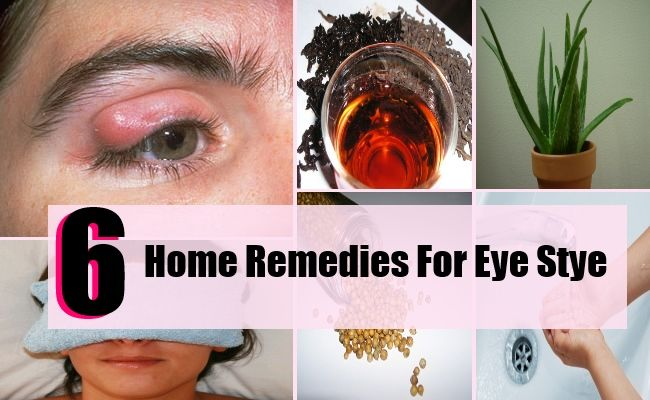 how to get rid of eye stye naturally