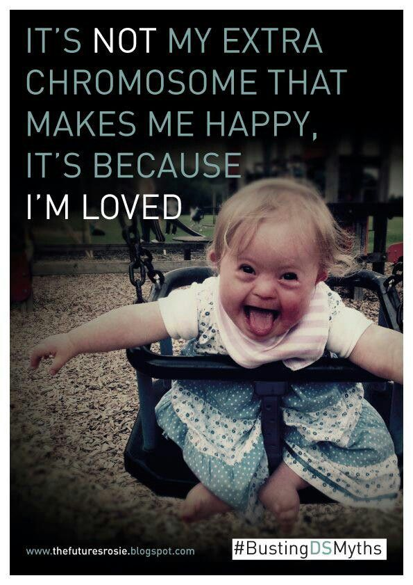 Down Syndrome ♥