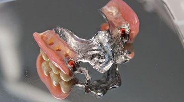 I pazienti dovrebbero eseguire l'igiene orale quotidianamente in casa, usando spazzolini da denti, dentifrici, scovolini interdentali, filo interdentale e colluttori. E' sufficiente eseguire l'igiene della cavità orale due volte al giorno, ma solo se lo si fa correttamente, spazzolando i denti con la giusta tecnica e usando i mezzi idonei per l'igiene orale.http://dentista-croazia-nevedenti.com/protetica-dentale-croazia.html