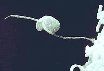 zoospore: fungal spore with flagella, capable of locomotion in water