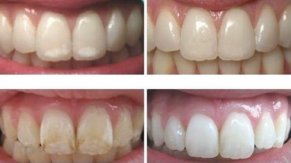 Cum sa iti remineralizezi dintii si sa iti intaresti smaltul dentar | Secretele