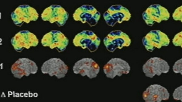 7News Boston The Dish - Clock ticking with new plan to fight Alzheimer's: Clocks Ticking