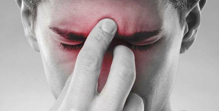 Tutti i sintomi e le terapie della sinusite e soprattutto come fare la diagnosi corretta La sinusite è un'infezione molto comune. Interessa i seni paranasali. Le cavità scavate nello schele sinusite diagnosi terapia