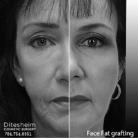 facial rejuvenation with fat grafting