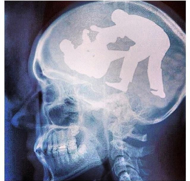 all the guys at the gym has this brain