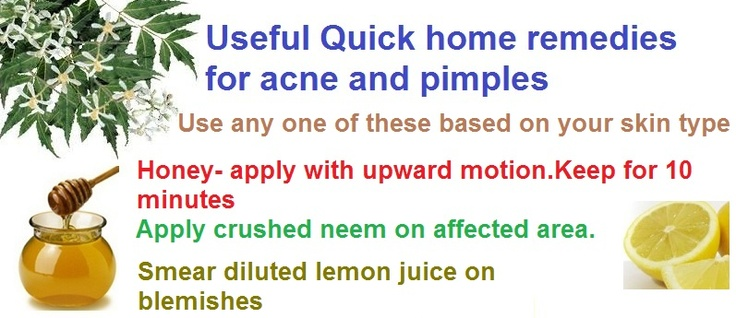 Useful Quick home remedies for acne and pimples   Ayurveda Help Blog