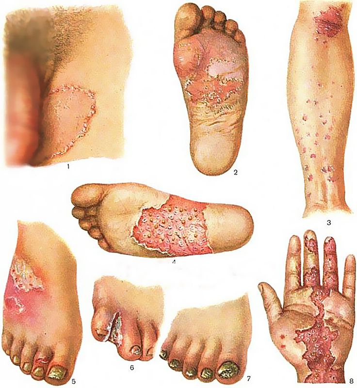 Natural Treatment For Athletes Foot Infection