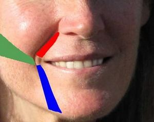 Look Younger in 4 Days. Facial Exercise Removes Laugh Lines, Sagging Skin and Wrinkles - Yahoo! Voices - voices.yahoo.com