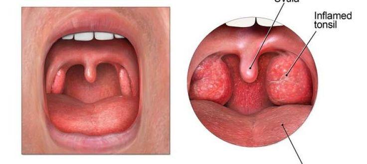 Remedios para tratar la infección de garganta