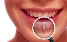 Get your broken tooth repaired by the #DentalImplantsMelbourne, an extremely recommended specialist known widely for their contribution in eradicating the damaged tooth.