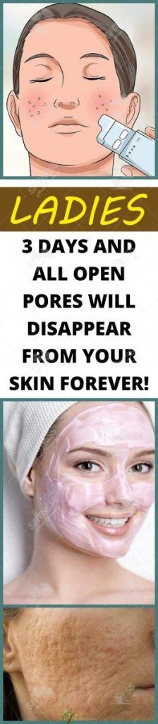Big pores?! Well, many people have them and these people use different types of cosmetic products and remedies to make these pores less visible and shrink them (as much as possible). We all know th…