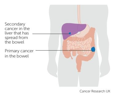 33 best ingeniera gentica images on pinterest school ap diagram showing a primary and secondary cancer ccuart Gallery