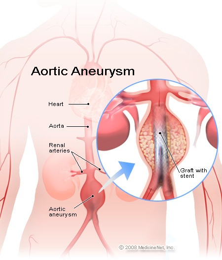 The aorta carries oxygen-rich blood from the heart to smaller arteries throughout the body. An abdominal aneurysm occurs in the abdominal aorta, the part of the aorta between the bottom of the chest and the pelvis.