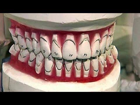 """Теория заговора """"Стоматологи"""" (15.03.2015)"""