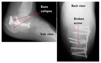 Calcaneus (Heel Bone) Fractures-OrthoInfo - AAOS