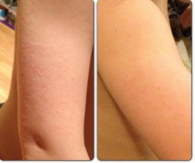 Before and After, eczema