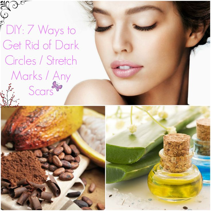 DIY: 7 ways to get rid of dark circles/ANY type of scar/Stretch Marks.