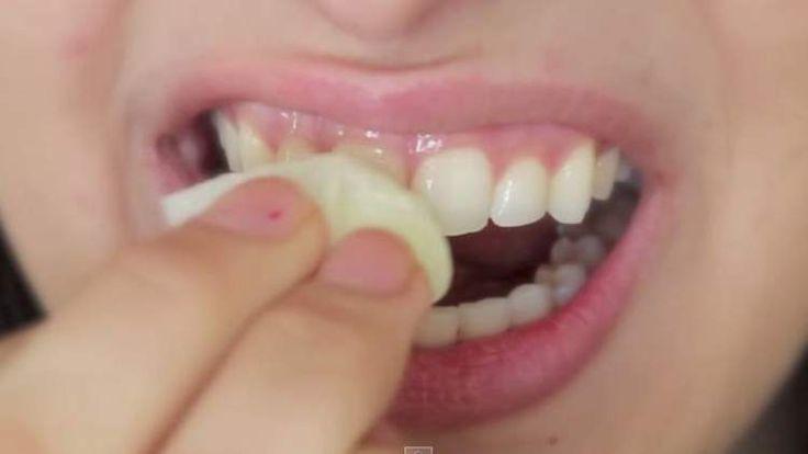 Receitas Caseiras para acabar com a placa dos dentes