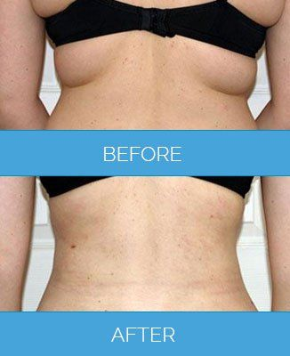 Know more about vaser liposuction and the benefits of it also. It is a unique body contouring procedure to shape up differ targeted regions of your body. Look fit, feel confident and start getting compliments.