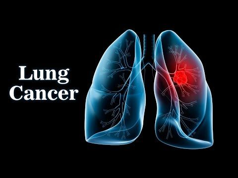 Lung Cancer - Causes, Symptoms, Stages & Treatments - WATCH VIDEO HERE -> http://bestcancer.solutions/lung-cancer-causes-symptoms-stages-treatments    *** symptoms of lung cancer ***   Lung cancer, also known as lung carcinoma, is a malignant lung tumor characterized by uncontrolled cell growth in tissues of thelung. If left untreated, this growth can spread beyond the lung by process of metastasis into nearby tissue or other parts of the...