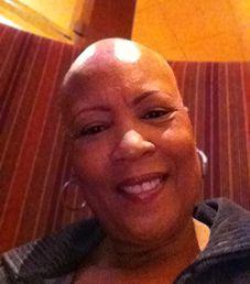 HERE'S HER STORY: #Alopecia #Universalis | HealthyFitLadies #alopeciauniversalis
