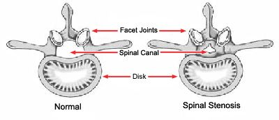 Lumbar Spinal Stenosis-OrthoInfo - AAOS