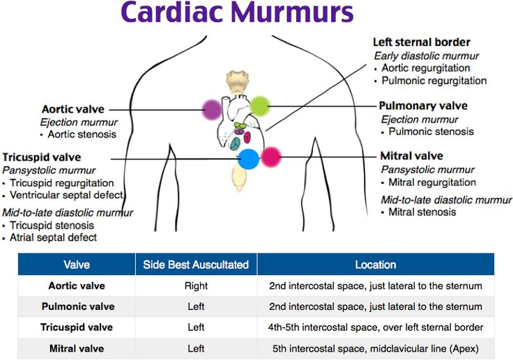 Auscultating Cardiac Murmurs. ***timing of aortic valve murmurs- Systolic = stenosis, diastolic = regurgitation***