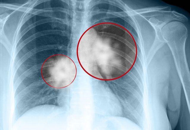Akciğer kanserini engelleyen kür