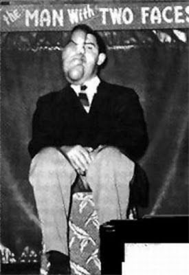 Robert Owen Melvin (1920-1995) had neurofibromatosis that enlarged half his face.  He was barred from school as a child but he excelled at math, and often helped with the bookkeeping for the sideshows.  Bob first entered show business in 1949. When he married his longtime girlfriend Virginia in 1952, observers were heard to mutter that the match-up wouldn't last a year, but in fact it lasted more than forty.  They had one daughter.