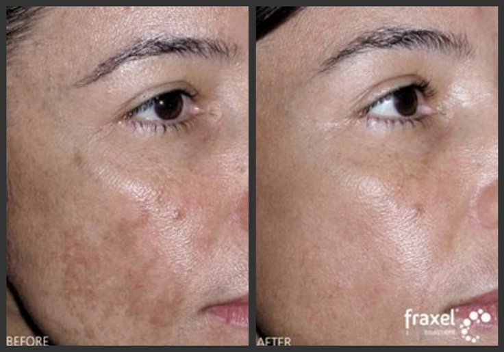 Melasma Laser Treatment Quot Before And After Quot Pregnancymask