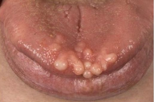 """usmlepathslides: """" Multiple Endocrine Neoplasia IIB is associated with medullary thyroid carcinoma (secretes calcitonin); pheochromocytoma; oral/intestinal ganglioneuromatosis (and marfanoid habitus) Above, mucosal neuromas in a patient with Multiple..."""