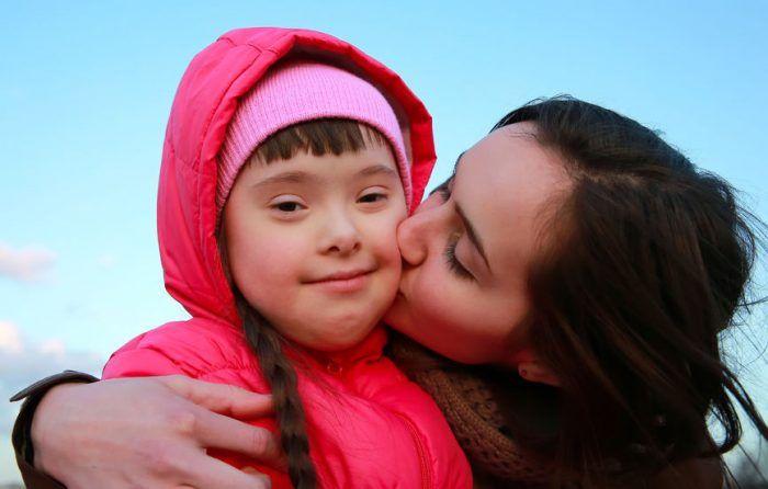 Los signos más evidentes del Síndrome de Down