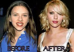 scarlett jonhson before and after plastic surgey – ✿⊱╮ –
