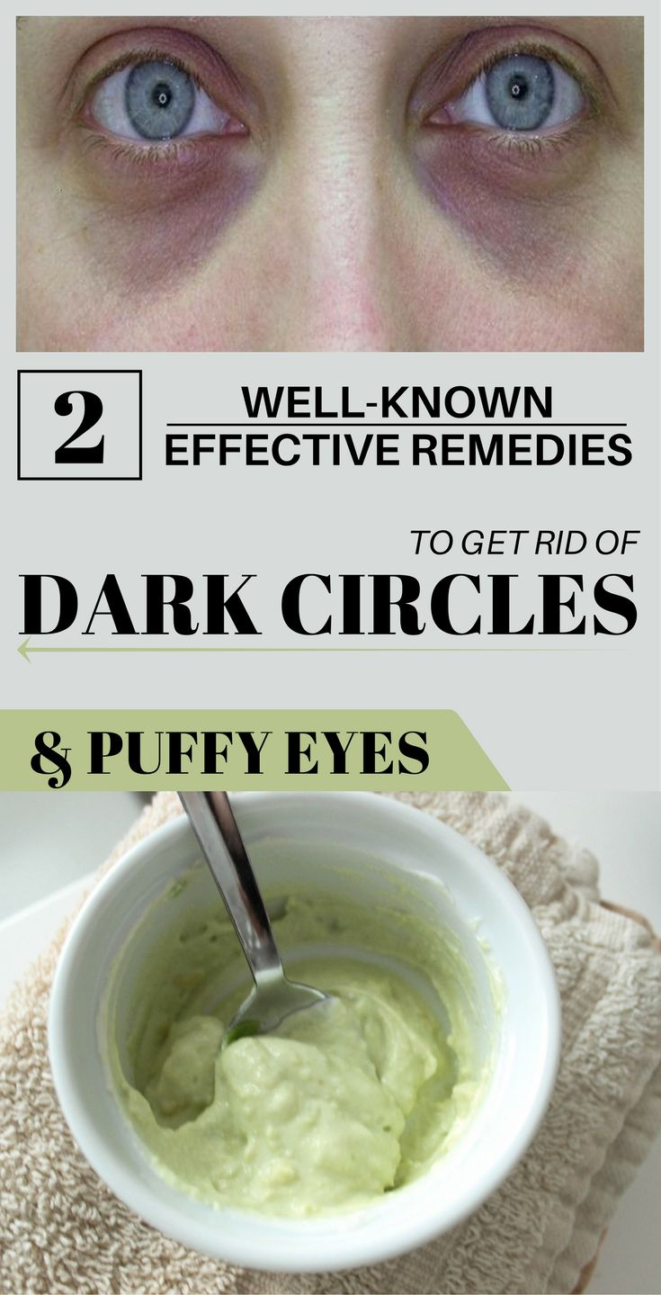 Dark circles appear when the body is weak and it doesn't ...