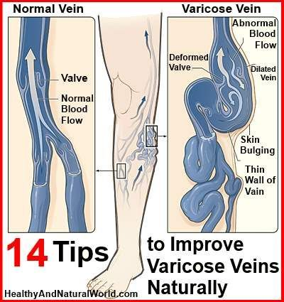 14 Tips to Improve Varicose Veins Naturally http://www.healthyandnaturalworld.com/improve-varicose-veins-naturally/#comment-98333 (Here's my extra tips: These veins can be eradicated without surgery. Cut down on any thing hydrogenated fats/oil for a start. You do not have to live with varicose veins - they are actually a pre-symptom for those with higher risks of heart or trans-fat issues. - Kelly Kc, MyQute.com/blog )