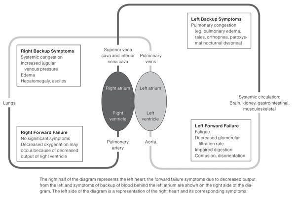 left vs right sided heart failure | Heart Failure Update - FP Essentials