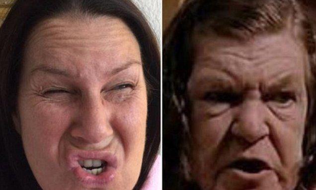 Julia Morris says she needs Botox