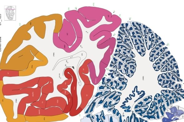 The new Allen Brain Atlas combines neuroimaging and tissue staining to offer an…