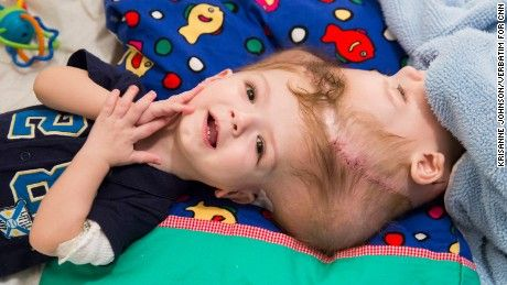 3D printing is aiding Dr. James Goodrich perform a separating surgery on these twin boys. In 2015,  Anias and Jadon McDonald were born conjoined at the head and brain. Today they are being separated.