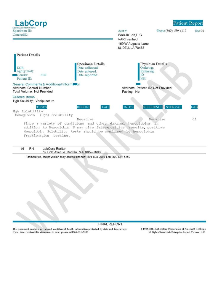 Hemoglobin Solubility Test: Sickledex   Walk-In Lab