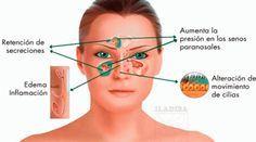 ZUMO NATURAL PARA ELIMINAR SINUSITIS Y RINITIS. La sinusitis es una inflamación que se crea en los senos paranasales, y por lo tanto esta afecta las membranas que cubren cavidades óseas. Por lo tanto suele parecerse a una fuerte gripe. Anuncios Hay 2 tipos de sinusitis, una de ella es la aguda y la otra es a la que se le llama …