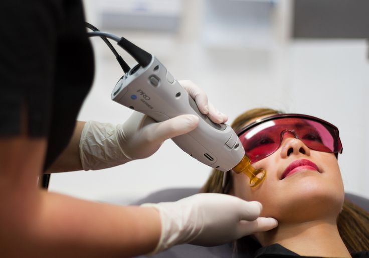 Laser Treatment for Facial Pigments at Pinnacle Figure