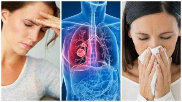 Ojo! 7 síntomas de cáncer de pulmón - ELIMPARCIAL.COM