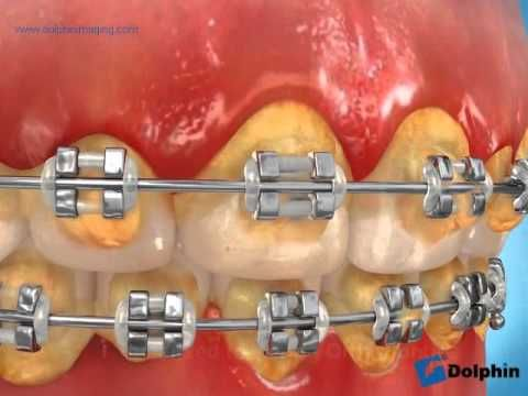 Poor Tooth Brushing with Braces can lead to this happening to your teeth when we remove the braces - be sure to keep good up good brushing habits with braces