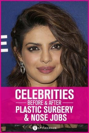 Top 25 Celebrities Before And After Plastic Surgery And Nose Jobs #makeup #ideas…